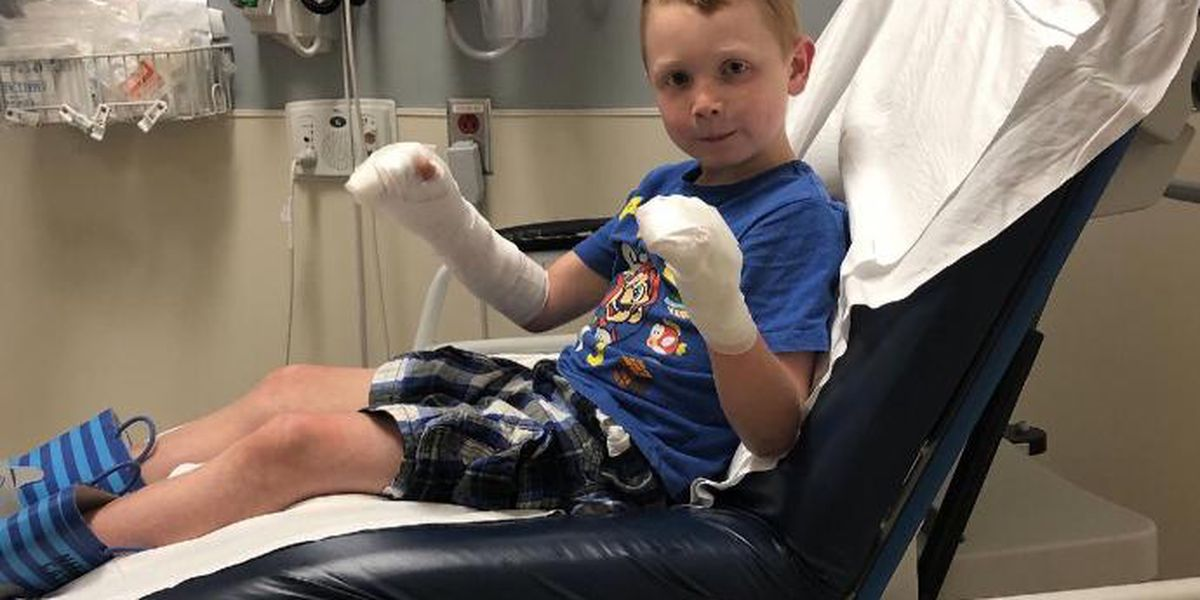 Boy burned while handling lime juice because of skin condition