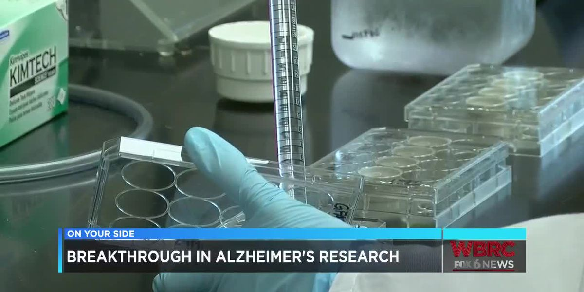 UAB Alzheimer's research