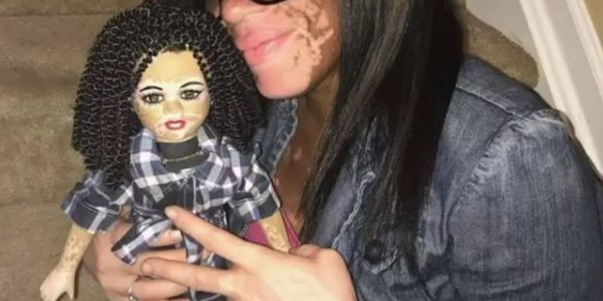 Custom dolls created with different skin conditions, such as albinism, vitiligo
