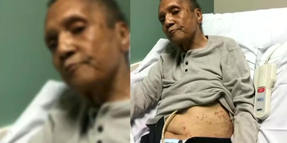 Woman says father bitten over 100 times by ants before death at Atlanta VA Medical Center