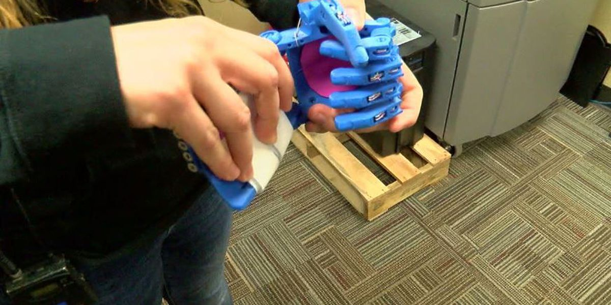 Kids in need of prosthetic hands get help from UA students
